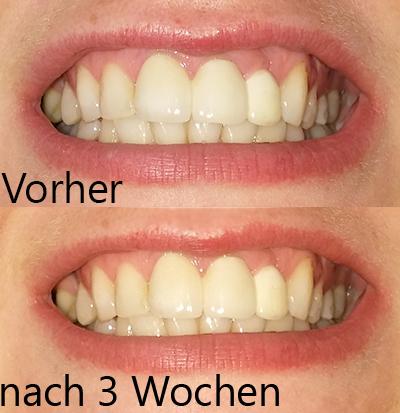 Weißere Zähne in zwei Wochen?