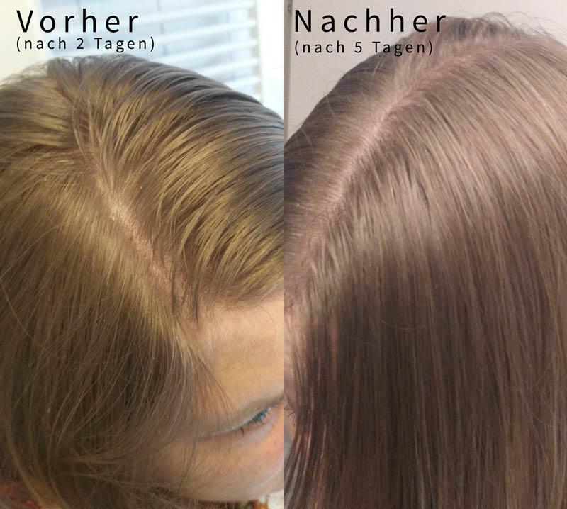 vorher-nachher-vergleich-roggenmehl-shampoo-fettige-haare